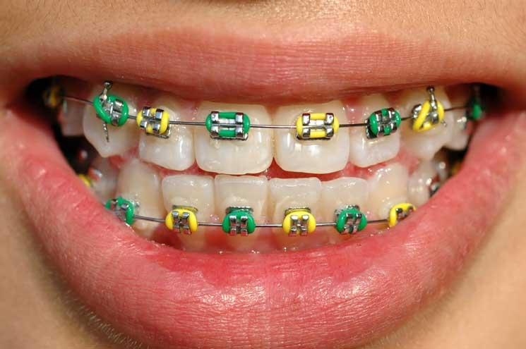 Лигатурные брекеты с цветными лигатурами.