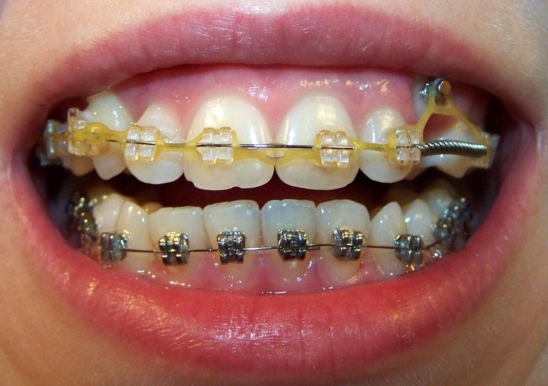 Сапфировые брекеты на верхней и металлические на нижней челюсти.