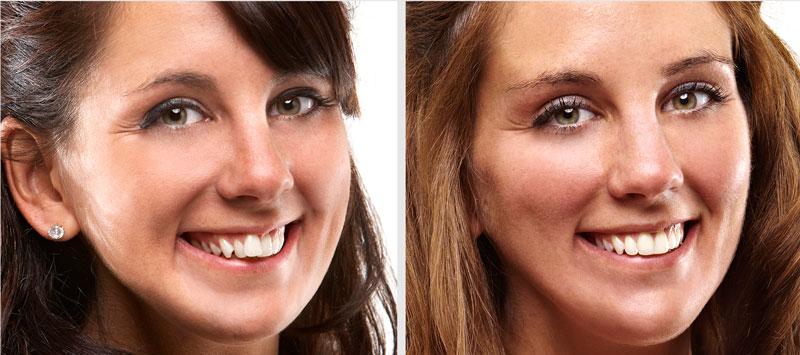 Выбор ортодонта: до и после