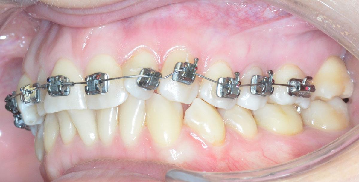 Брекеты на неровных зубах в начале лечения.