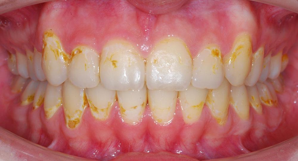 Деминерализация эмали: ортодонтическое лечение невозможно.