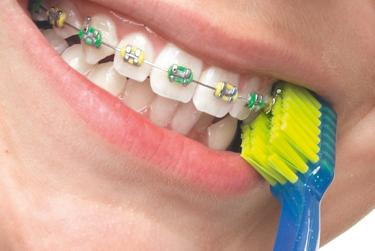 Зубная щётка для брекет-системы