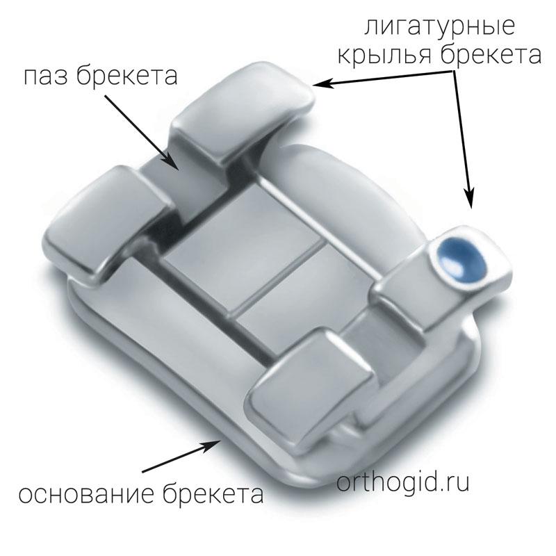 Конструкция лигатурного брекета, подписаны основные элементы.