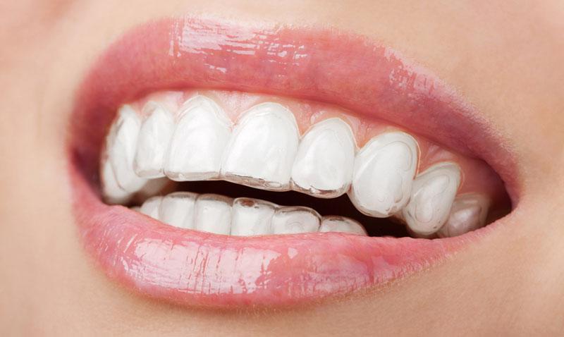 Фотография зубов с надетыми капами.