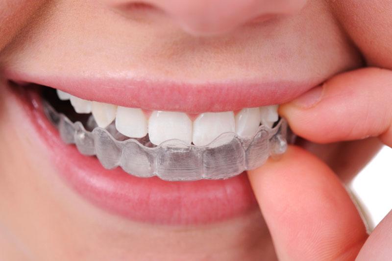 Установка элайнера на зубной ряд.