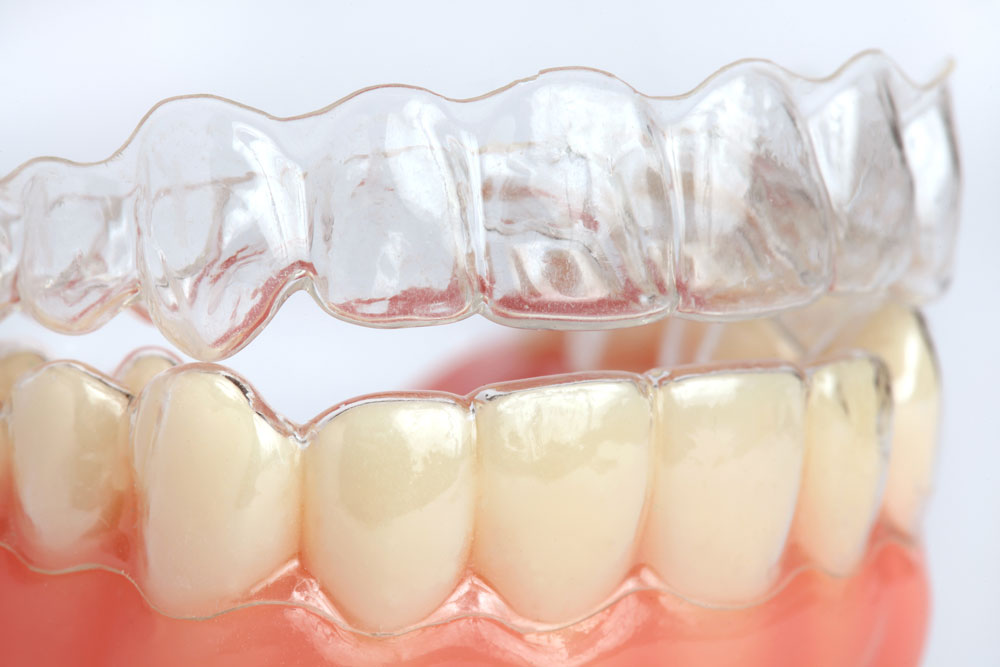 Можно ли выровнять зубы без брекетов?