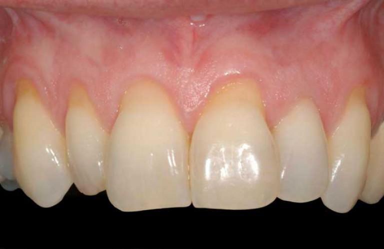 Рецессии десны после ортодонтического лечения